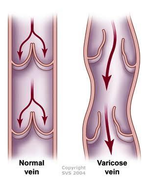 Normal Vein